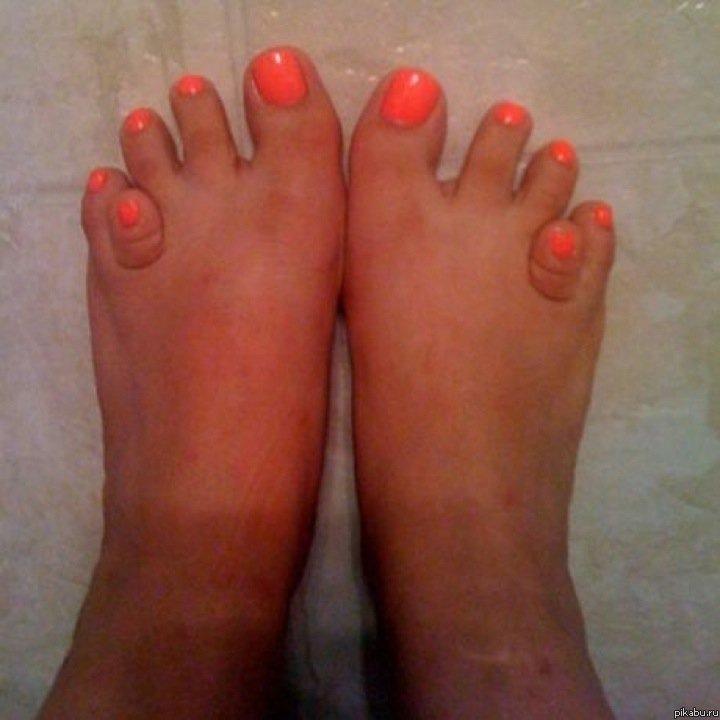 Педикюр на большом пальце ноги