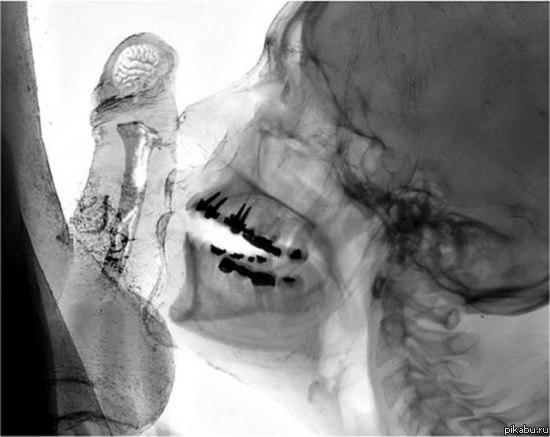 Порно через рентген фото 169-538