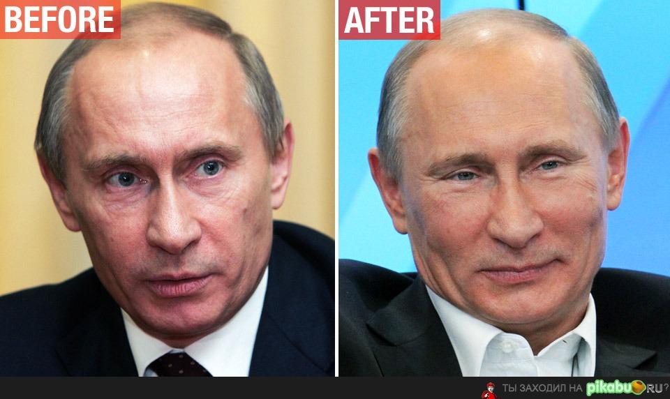 путин фото до и после пластики 2015