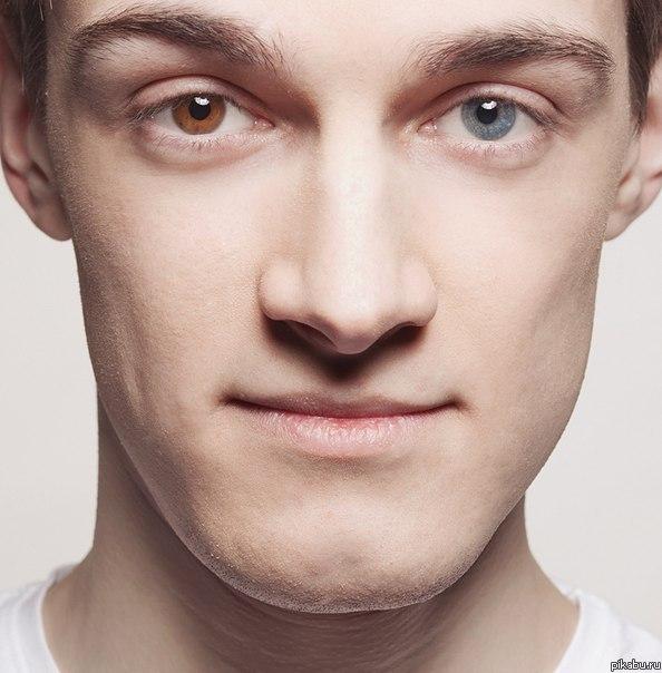 У человека глаза имеют разный цвет